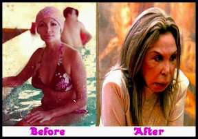 Elsa-Patton-Plastic-Surgery-Before-And-After.jpg