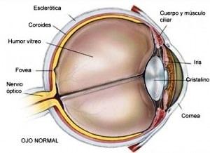 ¿Como curar el Glaucoma?