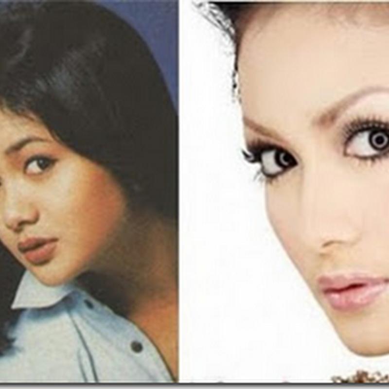 Krisdayanti sebelum dan selepas pembedahan plastik