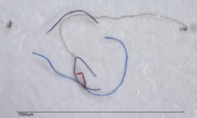 Tiny plastic fibers taken from a water sample in Blue Hill Bay in the gulf of Maine. 85 percent of the human-made material found on shorelines around the world are microfibers, and match the types of material, such as nylon and acrylic, used in clothing. Photo: Marine Environmental Research Institute