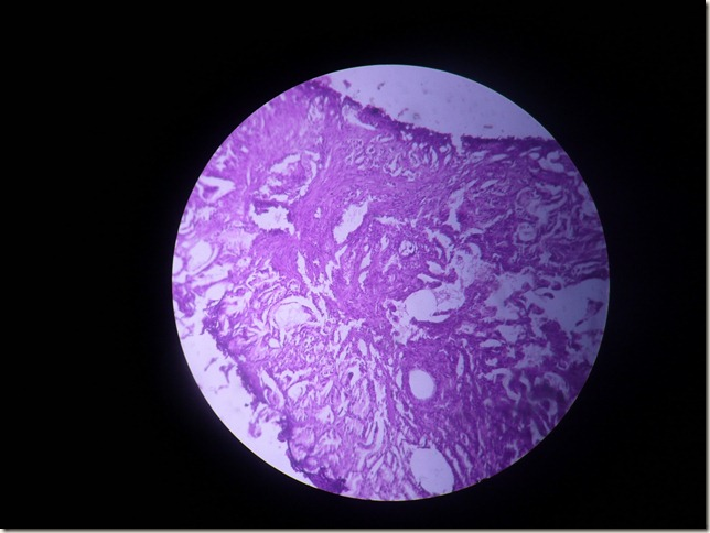 CA prostate histopathology