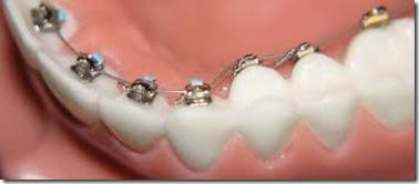 ortodoncia lingual ve precios costo en mexico argentina y españa clinicas especializadas