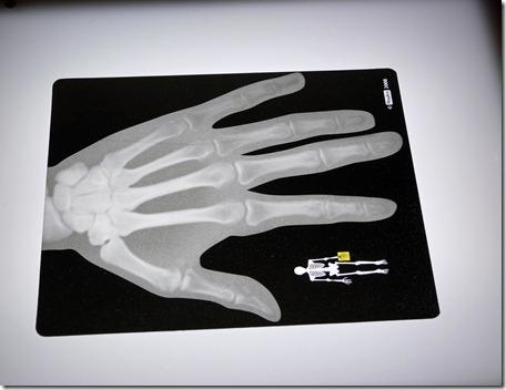 X-rays 1