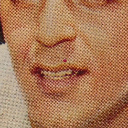 1959 Topps 78 Pedro Ramos variation