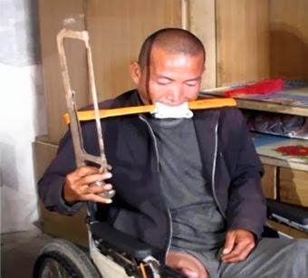 Fazendeiro chinês amputa a própria perna