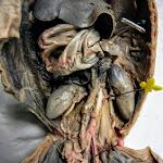 fetal_pig_ureter.JPG