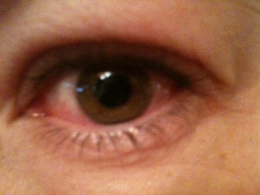 alltid röda ögon