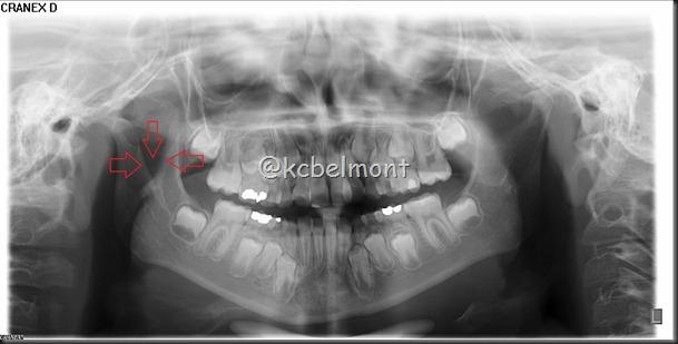 incisura da mandbula