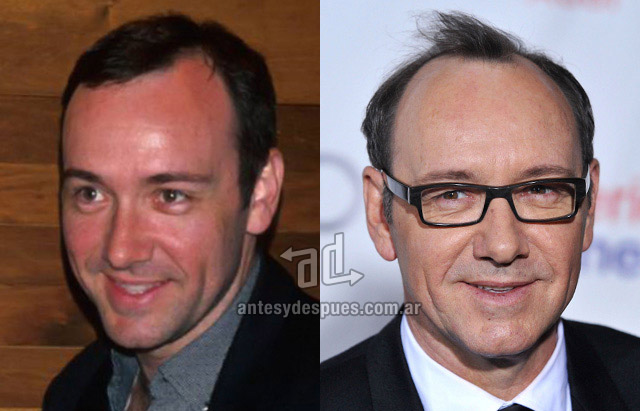 Hair Loss Before &amp; After of  Kevin Spacey