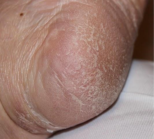 Baby Foot 7