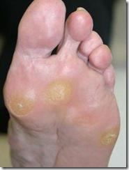callosidades en los pies callo en plantas del pie y manos