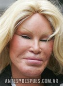Jocelyn Wildenstein,