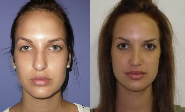 Rhinoplasty (Cosmetic Nose Surgery)