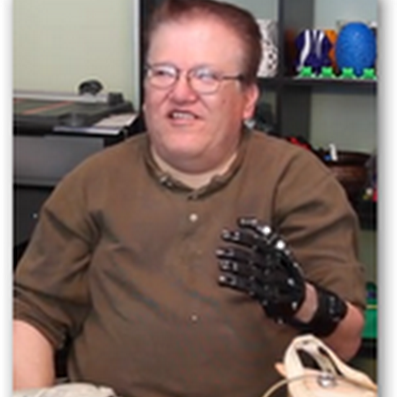 Amazing Comparison With $50 3D Printed Prosthetic Hand Versus $42k Myoelectric Prosthesis