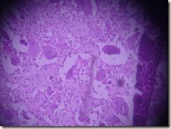 giant cell tumour histology slide