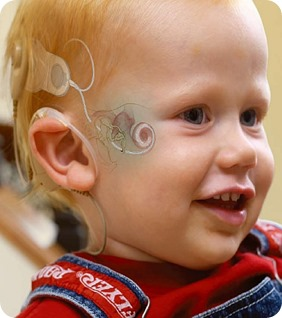 Cochlear-Implant-Diagram-Boy