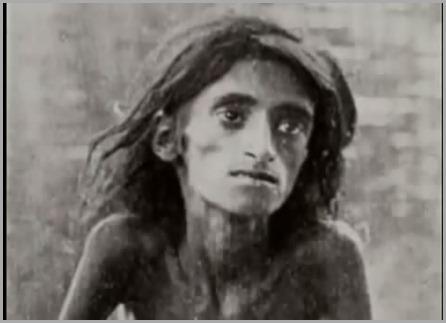 Adolescente morrendo de fome
