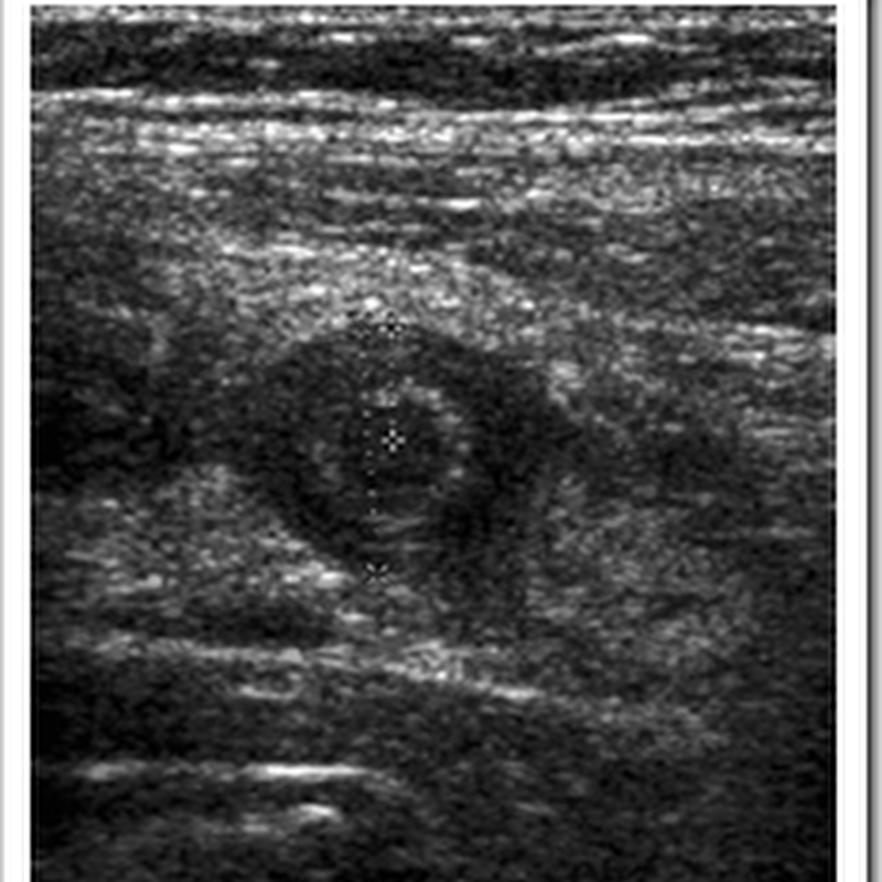 Ultrasound images of Acute Appendicitis