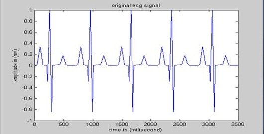 ECG signal from electrode