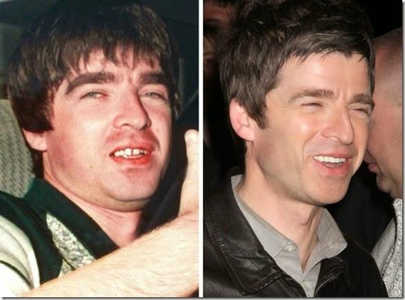 missing-teeth-funny-005