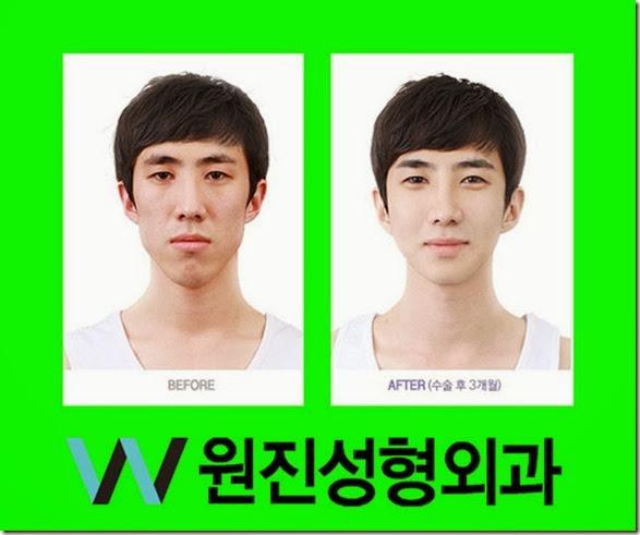 korean-plastic-surgery-41