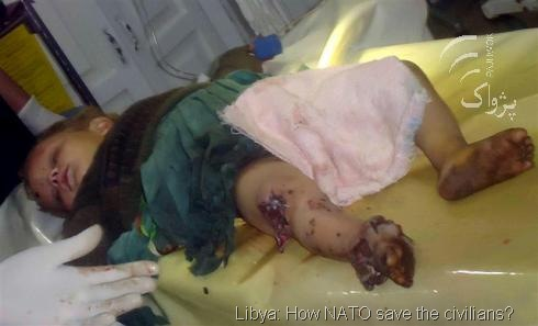 baby-injured-by-nato-LIBYA-OIL-WAR%25255B22%25255D.jpg