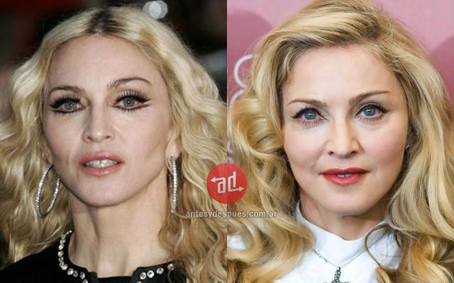 Famosos con botox, Madonna
