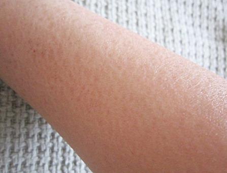 my dry arm, bitsandtreats