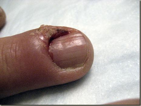 Finger Post Treatment