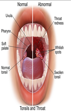 Penyakit tonsilitis