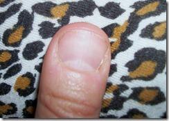 paddle thumb