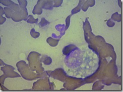monociti3