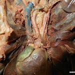 pulmonary_trunk.JPG