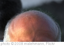 'Moon Scape of Bald Head' photo (c) 2008, malehmann - license: http://creativecommons.org/licenses/by/2.0/