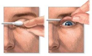 ماذا تفعل اذا دخل جسم غريب العين ؟