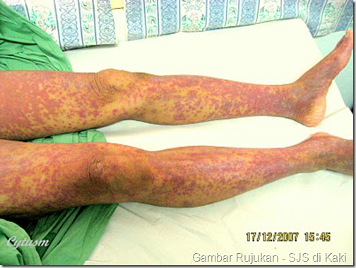 Steven Johnson Sindrome_Adverse Drugs Reaction _Leg