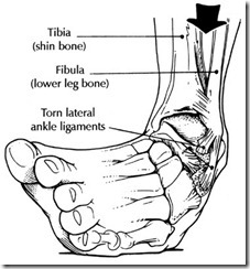 ankle-sprain-drawing