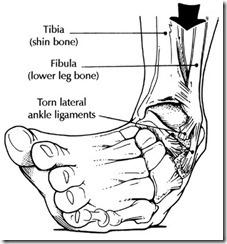 ankle-sprain-drawing