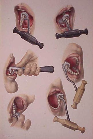 Use of the dental key