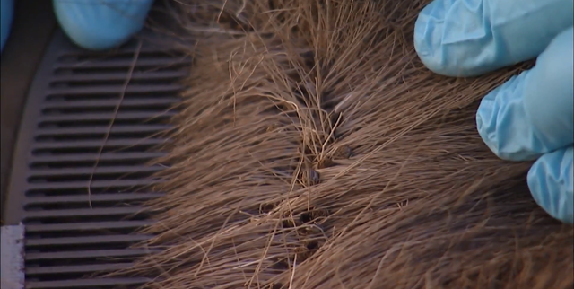 Researchers comb the fur of a dead New Hampshire moose calf to reveal the winter tick infestation that killed it. A massive moose die-off is caused primarily by a devastating parasite, the winter tick, which survives the increasingly warm winters. Photo: NPR