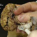 brain_dissect10.jpg