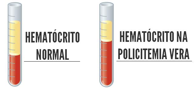 Hematócrito