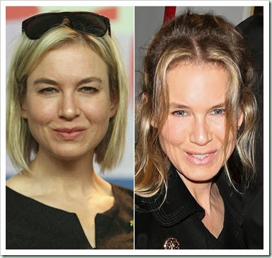 renee-zellweger-plastic-surgery-experts-say-ftr