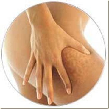 tratamiento de la celulitis-