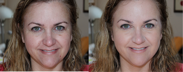 Before After OCC Skin Conceal