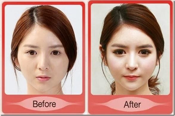 korean-plastic-surgery-24