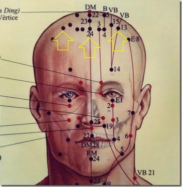 acupuntura curitiba ansiedade depresão tristeza