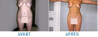 exemple-photo-liposuccion-avant-apres-cellulite-hanches.jpg