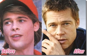 Brad Pitt  Ears surgery