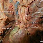 pulmonary_trunk_L.JPG